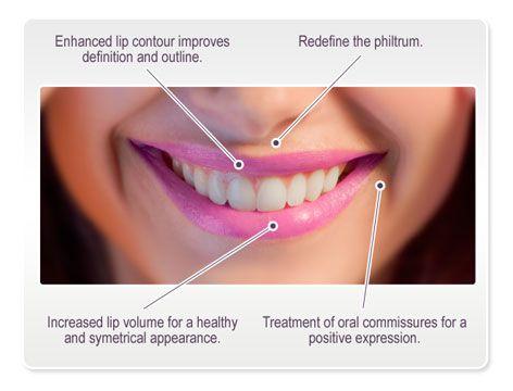 lip diagram | Diarra