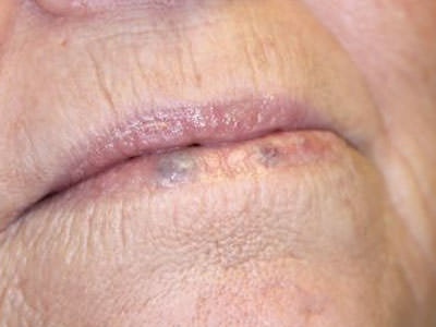 Treatments For Skin Lesions Warts Moles And Skin Tags